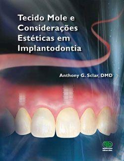 Livro Tecido Mole E Considerações Estéticas Em Implantodontia  - LIVRARIA ODONTOMEDI