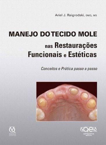 Livro Manejo Do Tecido Mole Nas Restauraçoes Funcionais E Estética  - LIVRARIA ODONTOMEDI