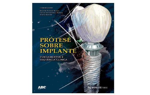 Prótese Sobre Implante: Fundamentos E Sequência Clínica  - LIVRARIA ODONTOMEDI