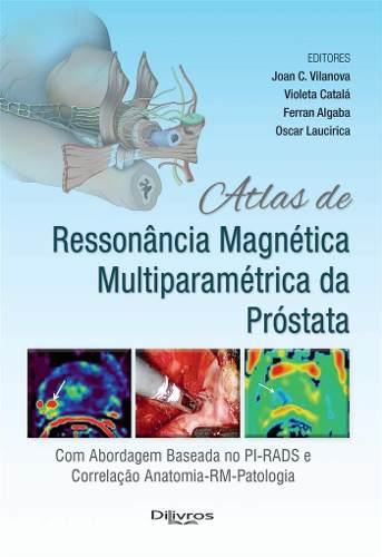 Livro Atlas De Ressonancia Magnetica Multiparametrica Da Prostata  - LIVRARIA ODONTOMEDI