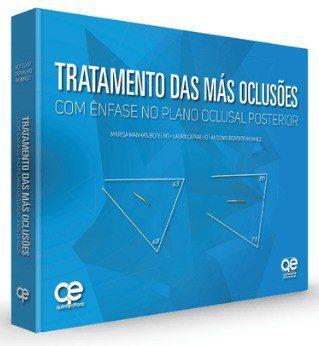 Livro Tratamento Das Mas Oclusões 1ª Edição 2018  - LIVRARIA ODONTOMEDI