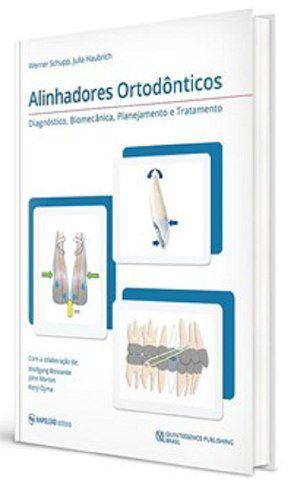 Alinhadores Ortodônticos - Diagnóstico, Biomecânica, Planejamento e Tratamento  - LIVRARIA ODONTOMEDI