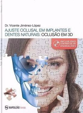 Livro Ajuste Oclusal Em Implantes E Dentes Naturais: Oclusão Em 3d  - LIVRARIA ODONTOMEDI