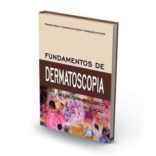 Livro Fundamentos De Dermatoscopia - Ramos E Silva  - LIVRARIA ODONTOMEDI