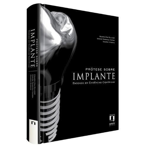 Livro Prótese Sobre Implante: Baseado Em Evidências Científica  - LIVRARIA ODONTOMEDI