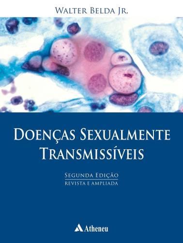 Livro Doenças Sexualmente Transmissíveis - 2ª Edição  - LIVRARIA ODONTOMEDI