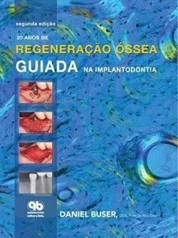 Livro 20 Anos De Regeneraçao Óssea Guiada Na Implantodontia  - LIVRARIA ODONTOMEDI