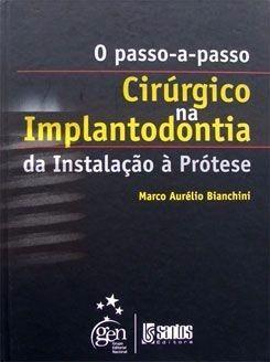 Livro O Passo A Passo Cirurgico Na Implantodontia  - LIVRARIA ODONTOMEDI