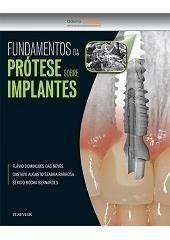 Livro Fundamentos Da Protese Sobre Implantes - 1ª Edição  - LIVRARIA ODONTOMEDI