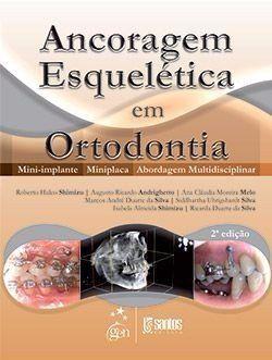Livro Ancoragem Esquelética Em Ortodontia - Mini-implante  - LIVRARIA ODONTOMEDI