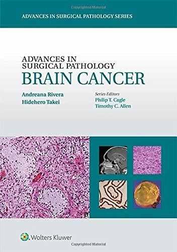 Livro Advances In Surgical Pathology: Brain Cancer  - LIVRARIA ODONTOMEDI