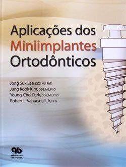 Livro Aplicaçoes Dos Miniimplantes Ortodônticos  - LIVRARIA ODONTOMEDI