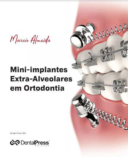 Livro Mini-Implantes Extra-Alveolares Em Ortodontia