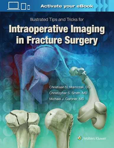 Livro Intraoperative Imaging In Orthopaedic Trauma: Illustrated Ti  - LIVRARIA ODONTOMEDI