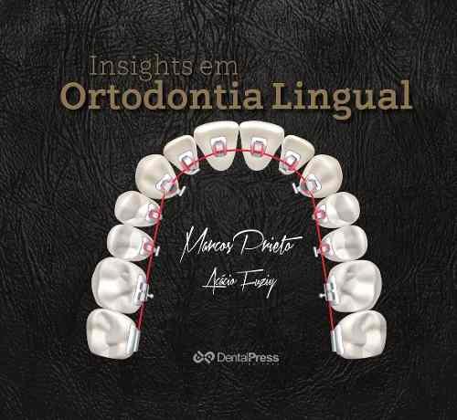Insights Em Ortodontia Lingual Marcos Prieto  - LIVRARIA ODONTOMEDI