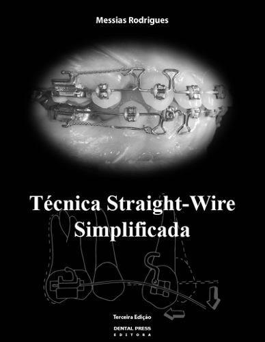 Técnica Straight-wire Simplificada  - LIVRARIA ODONTOMEDI