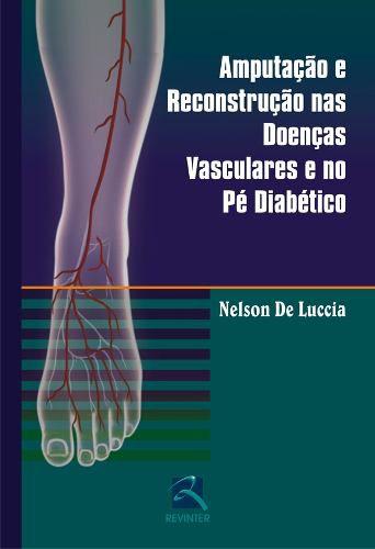 Amputação E Reconstrução Doenças Vasculares No Pé Diabético  - LIVRARIA ODONTOMEDI
