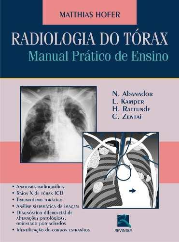 Livro Radiologia Do Tórax  - LIVRARIA ODONTOMEDI