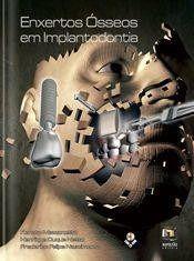 Livro Enxertos Ósseos Em Implantodontia  - LIVRARIA ODONTOMEDI