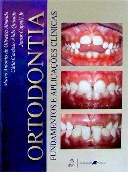 Livro Ortodontia: Fundamentos E Aplicações Clínicas  - LIVRARIA ODONTOMEDI