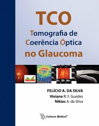 Tco - Tomografia De Coerência Óptica No Glaucoma  - LIVRARIA ODONTOMEDI