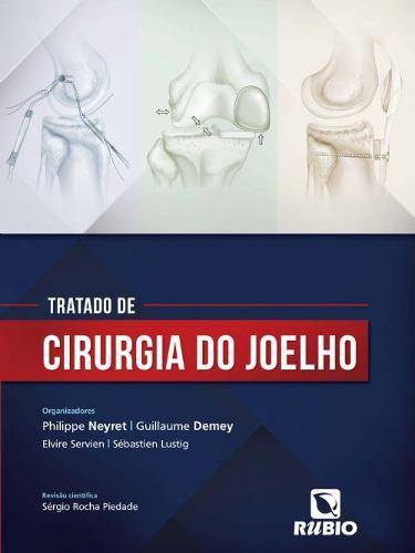 Livro Tratado De Cirurgia Do Joelho  - LIVRARIA ODONTOMEDI