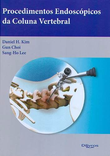 Procedimentos Endoscopicos Da Coluna Vertebral  - LIVRARIA ODONTOMEDI