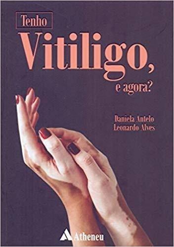 Livro Tenho Vitiligo, E Agora?  - LIVRARIA ODONTOMEDI