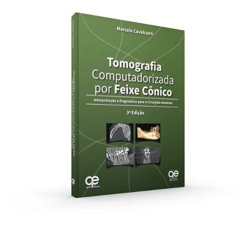 Livro Tomografia Computadorizada Por Feixe Cônico  - LIVRARIA ODONTOMEDI