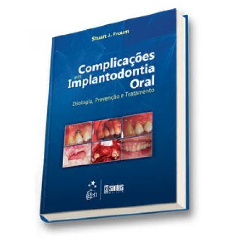 Livro Complicações em Implantodontia Oral Etiologia, Preven Tratament  - LIVRARIA ODONTOMEDI