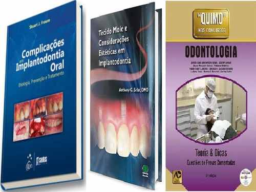 Complica Implan Oral, Tecido Mole Em Implant E Quimo Odontologia  - LIVRARIA ODONTOMEDI