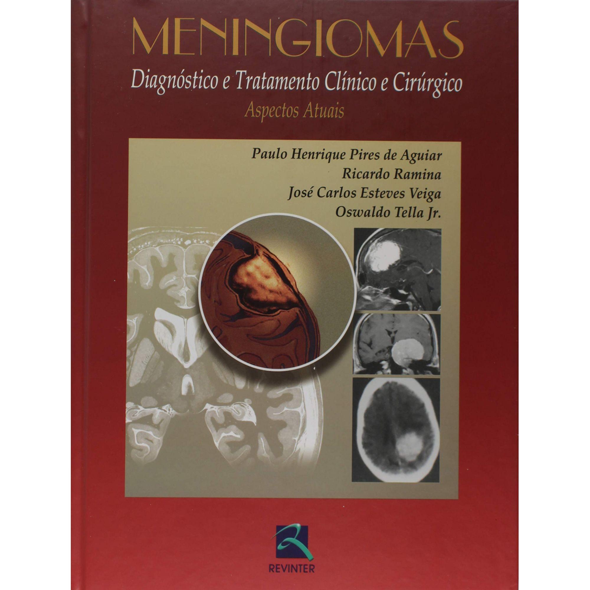 Livro Meningiomas  - LIVRARIA ODONTOMEDI