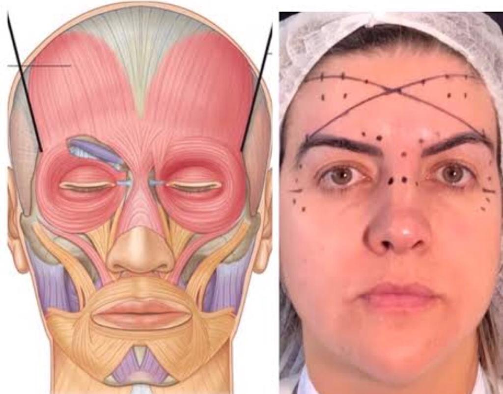 Mdm Harmonização Orofacial 2.0 - Analise Facial Digital  - LIVRARIA ODONTOMEDI