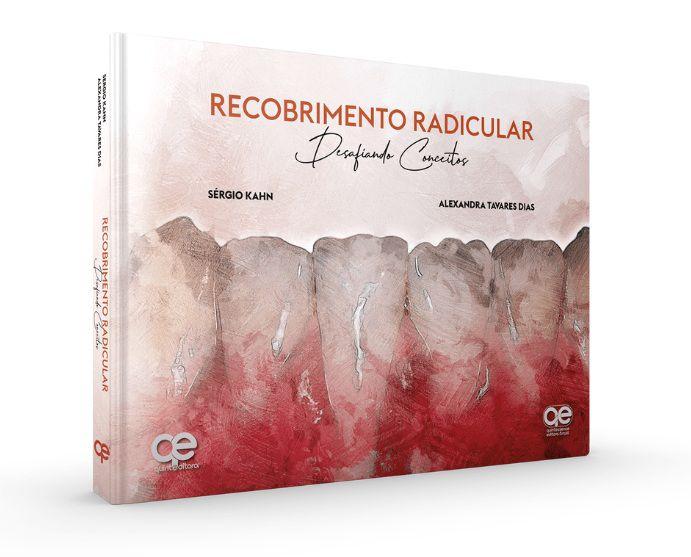 Livro Recobrimento Radicular Desafiando Conceitos  - LIVRARIA ODONTOMEDI