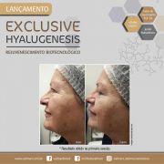 EXCLUSIVE KIT Hyalugenesis rejuvenescimento biotecologico Valmari