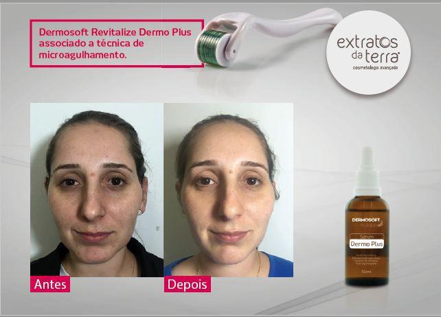 Dermosoft Revitalize Serum Dermo Plus 50 ml - Extratos da Terra