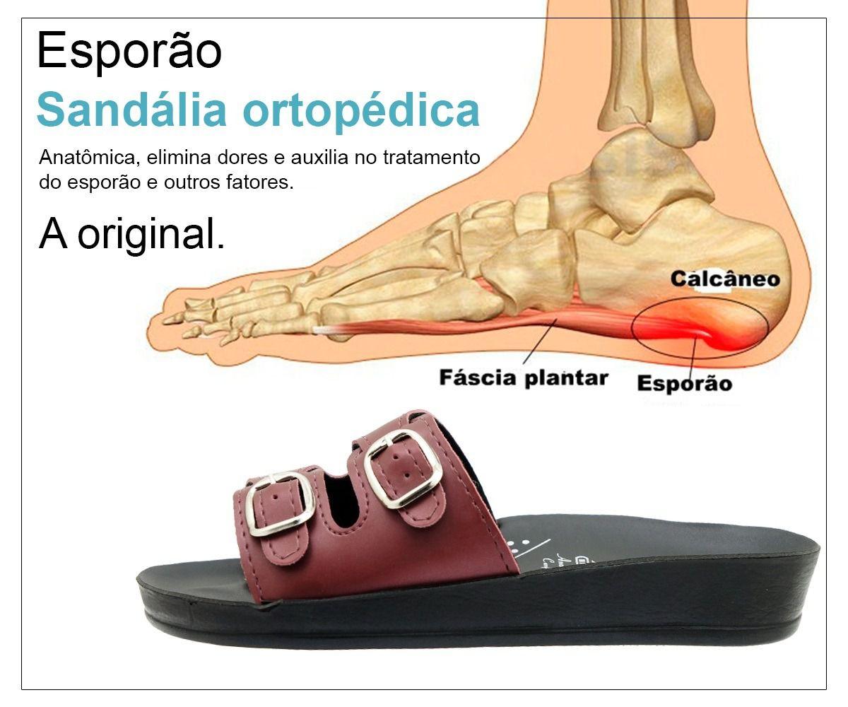 Chinelo Ortopédico Feminino para Esporão Joanete Preto e Dourado NB05