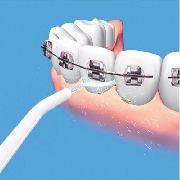 Irrigador Dental Oralfloss Limpeza Profunda Denteaparelho P5