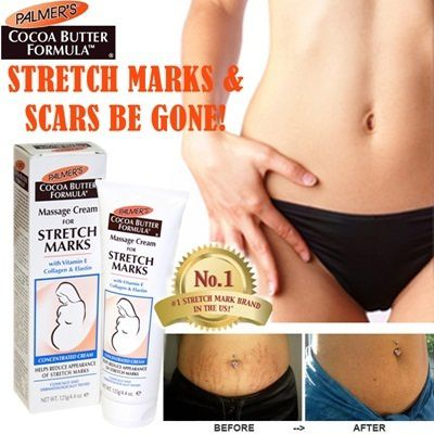 Cocoa Palmers Tummy Butter for Stretch Marks 125g Estrias Gravidez