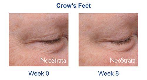 Neostrata Skin Active Contorno de Olhos 15ml