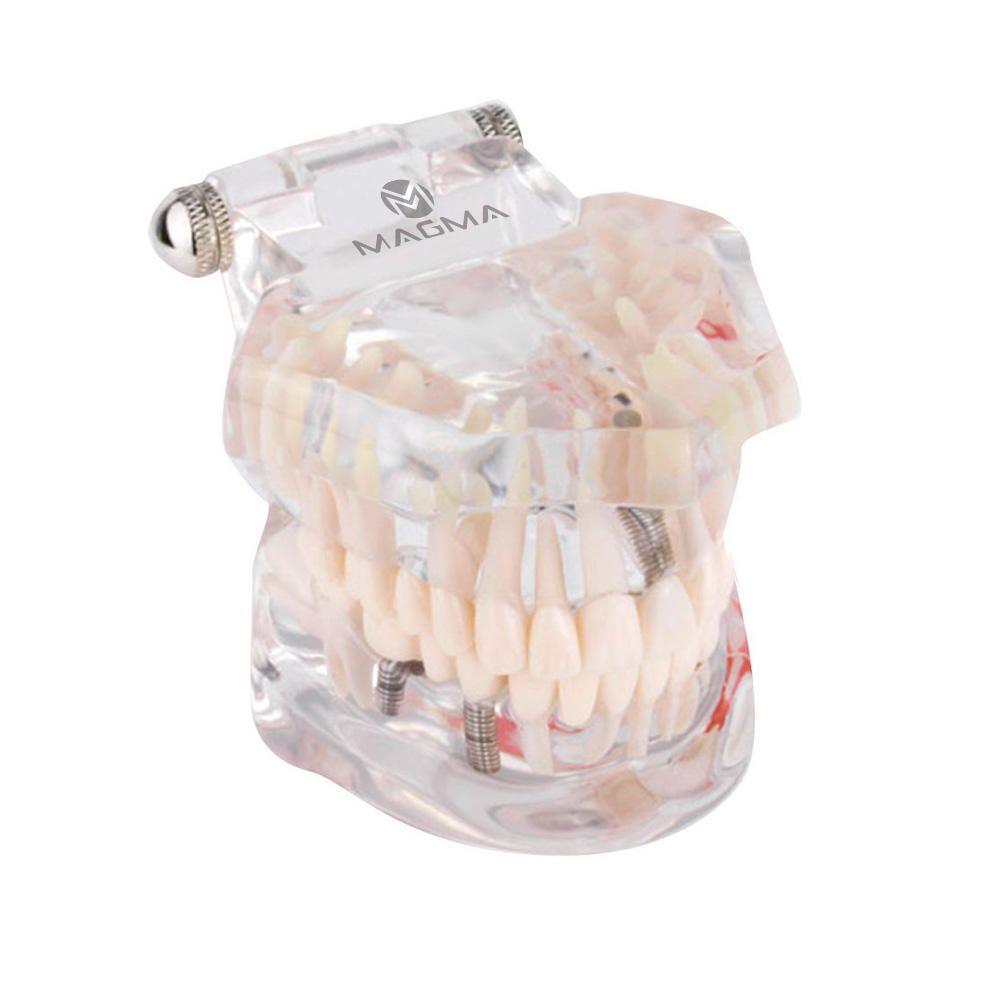 Arcada Dentaria Odontológica Macro Mod Estudo e Demonstração