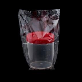 Coletor de Urina 100ml Tampa Vermelha Caixa 100 Unidades