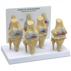 Conjunto de Modelo de Joelho Osteo de 4 Estágios