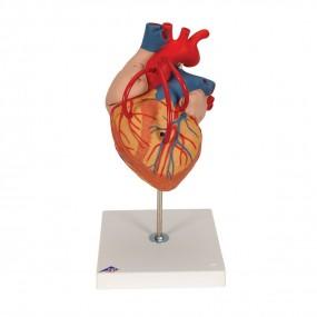 Coração com Pontagem Coronária, 2 Vezes O Tamanho Natural, 4 Partes
