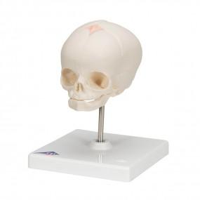 Crânio de Feto Montado sobre Suporte