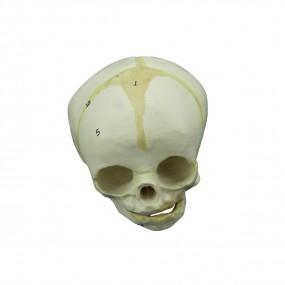 Crânio Humano Fetal