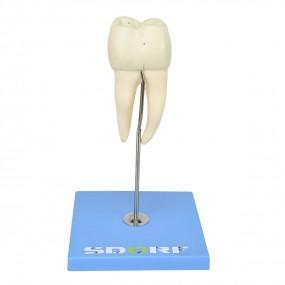 Dente Molar Inferior c/ Raiz Dupla em 3 Partes c/ Cárie, 8x O Tamanho Real Aprox.