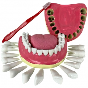 Dentição com Todos Os Dentes Removíveis