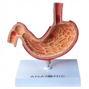 Estômago com Patologias