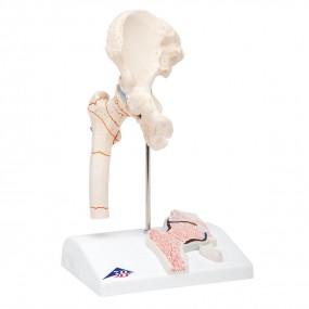 Fratura do Fêmur E Artrose Da Articulação Coxofemoral